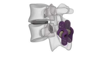 Hilfen für die Wirbelsäule: Spineart entwickelt medizinische Geräte für Chirugen und OP-Teams.
